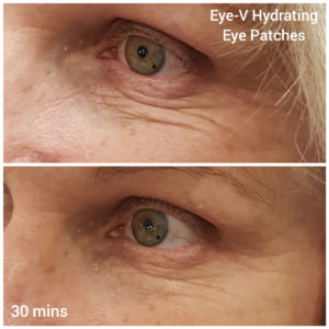 Our eye serum treats fine lines and wrinkles